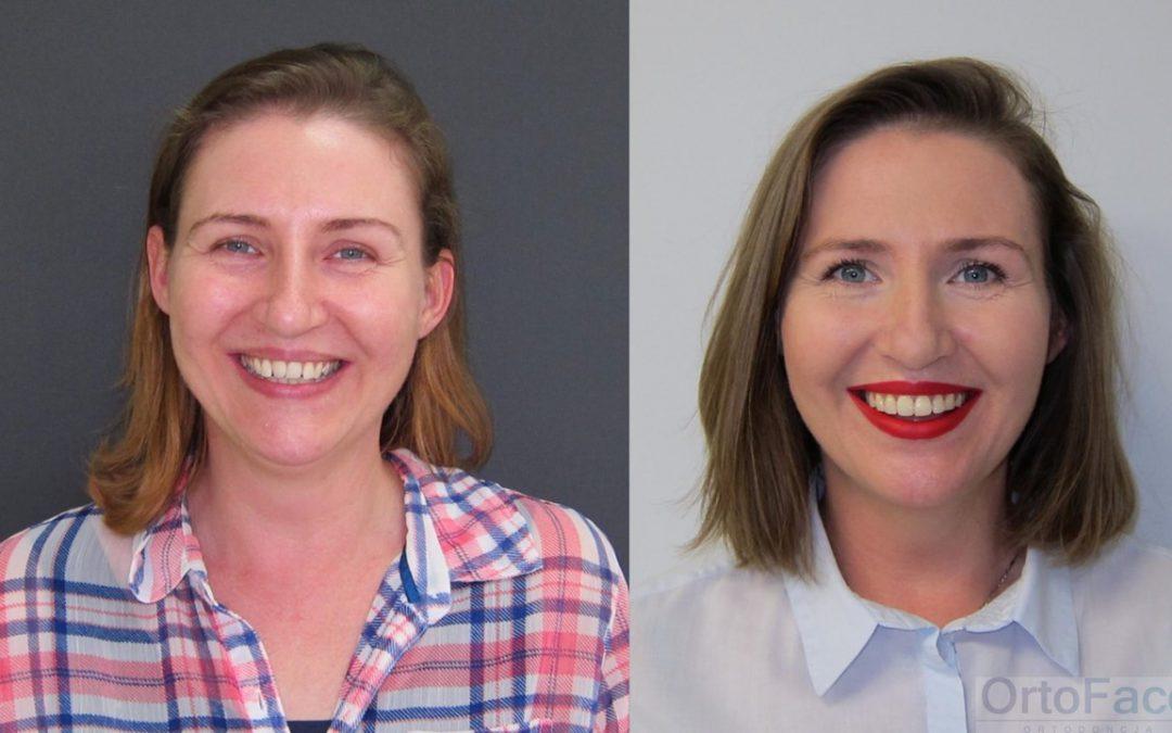 Zmiana uśmiechu = zmiana twarzy