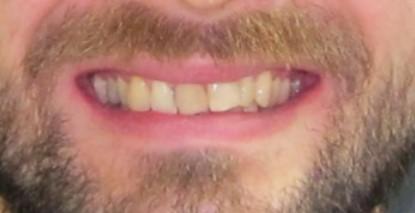 Uśmiech przed
