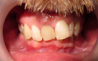 Gdzie są dolne zęby?